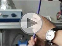 video-tw-screenshot-chemotherapy